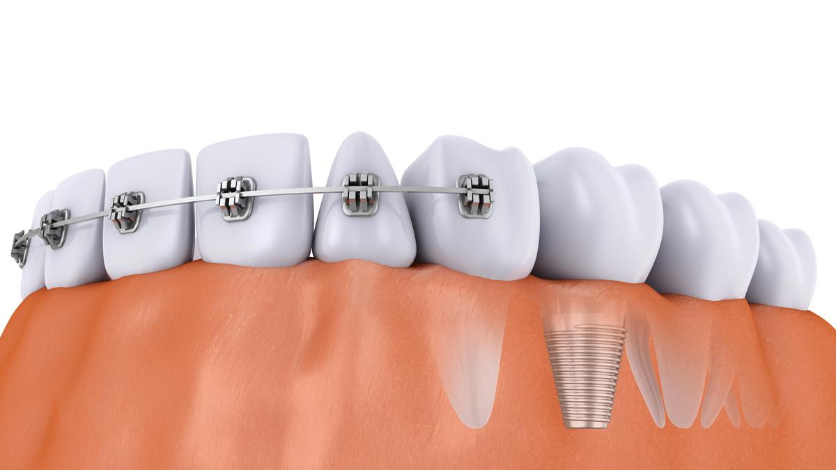 Centre dentaire Bayard : Pourquoi faire un soin dentaire ?
