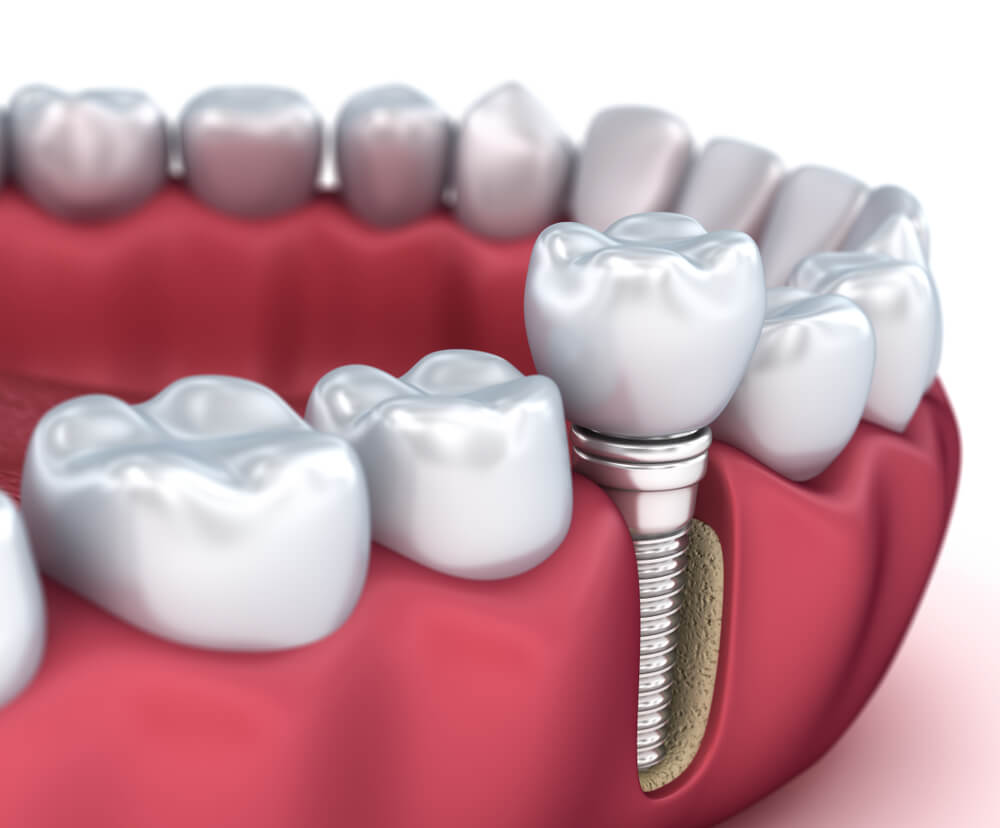 Centre dentaire : quels sont les avantages offerts par ces institutions ?