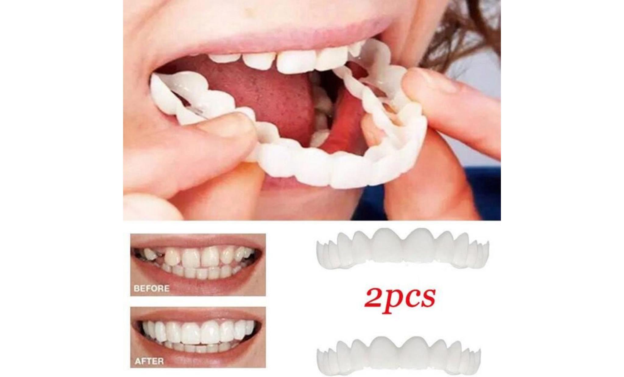 Prothèse dentaire : quels sont les types de dents artificielles ?